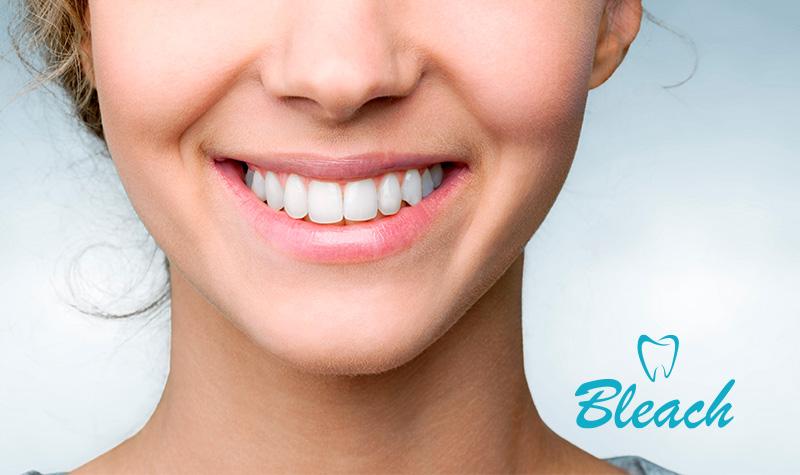 dientes-antesydespues-bleach